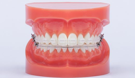 Signature III aesthetic ceramic brackets, with aesthetic wire on the upper jaw, and normal metal wire on the lower jaw