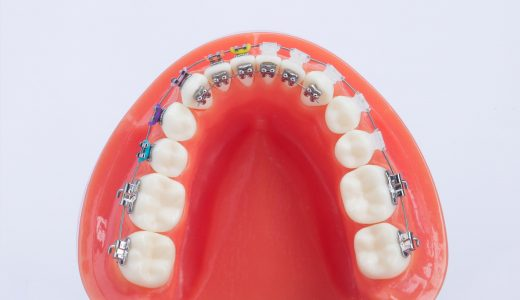 "i-TTR metal bracket ""Internal orthodontics"""