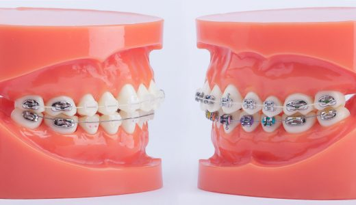 Comparing aesthetic and metal orthodonic systems