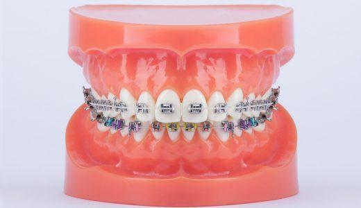 Modern Orthodontics Sapphire Metall-Brackets