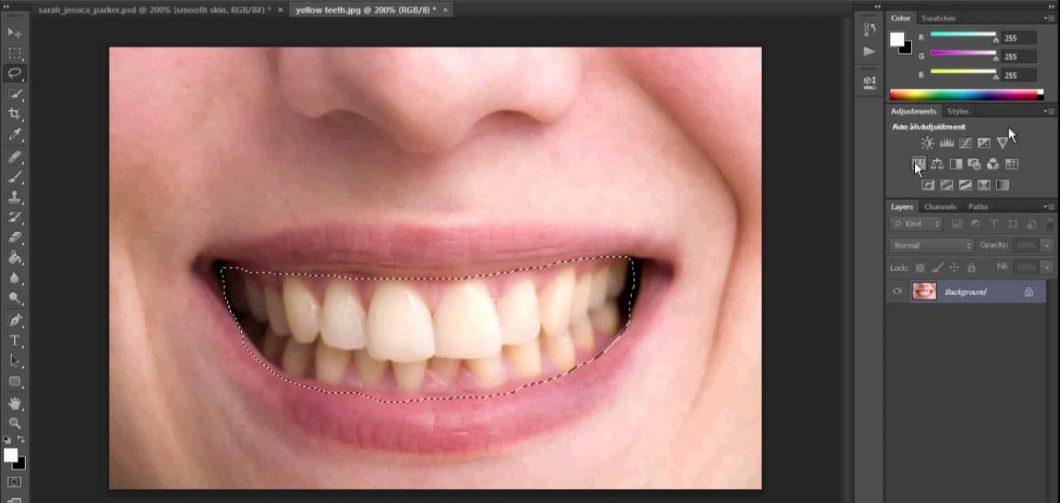 Fogfehérítés, avagy melyik a nyerő a fogorvos vagy a photoshop?